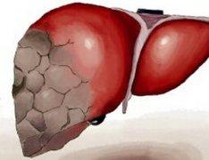 治疗肝癌 中药秘方有哪些