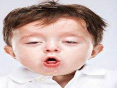 小儿肺热咳嗽的症状有哪些